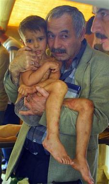 Bambino di Beslan